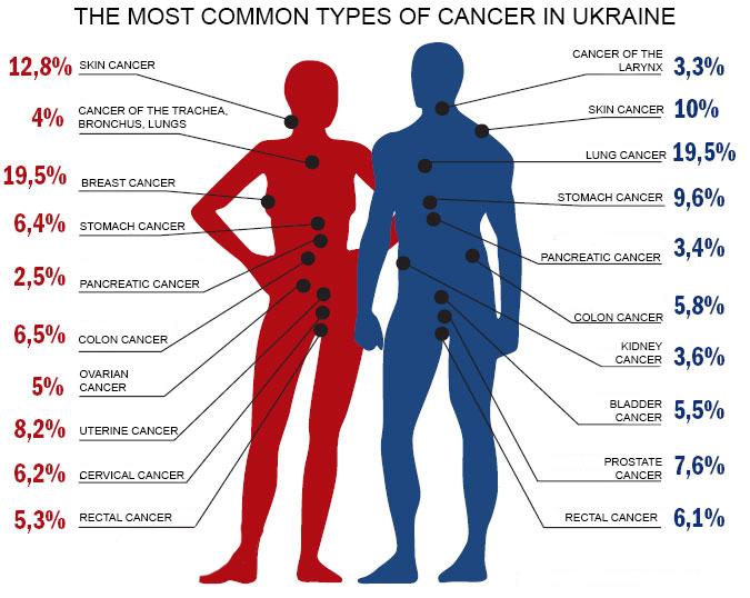 cancer in urina